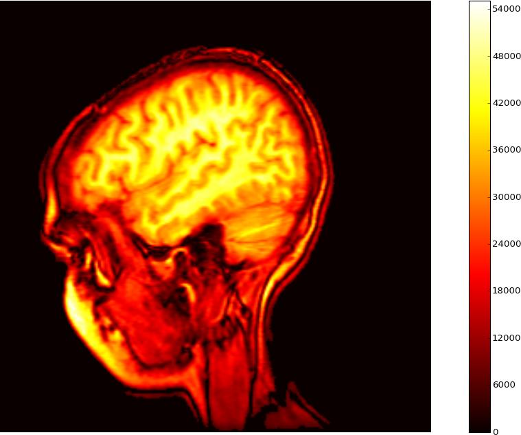 MRI matlab hot.png